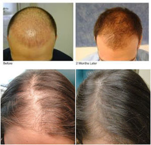 Hair loss treatment before and after images