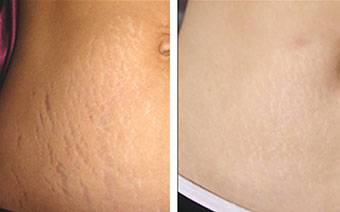 Before and after image of abdomen skin texture - platelet rich plasms (PRP) treatment