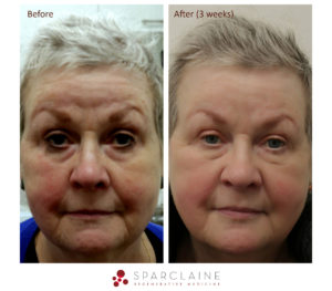 Before and after image of woman's face - PRP and microneedling treatment