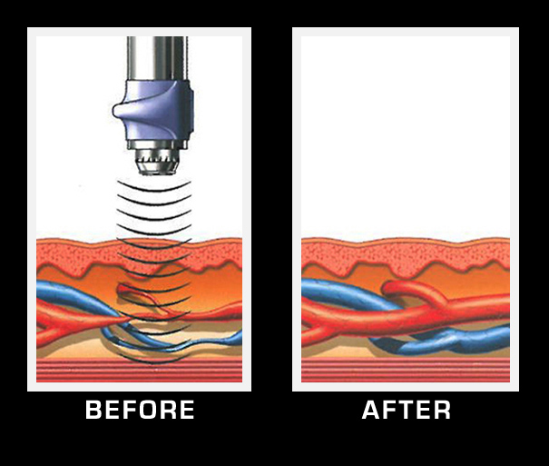 Visualization of blood vessels before and after GainsWave male enhancement treatment