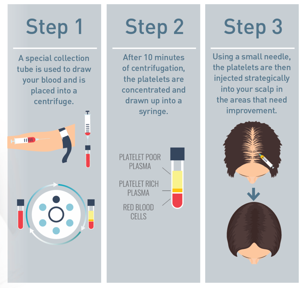 Infographic of steps used for Platelet Rich Plasma (PRP) hair growth treatment