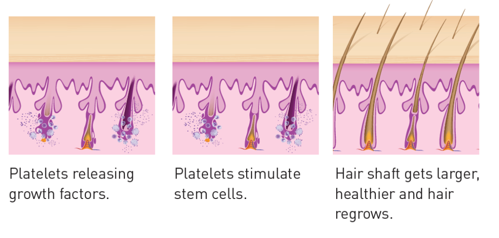 Infographic showing hair growth at the hair shaft when platelets stimulate stem cells